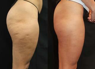 prima e dopo trattamento crema anticellulite