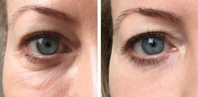 crema antirughe contorno occhi