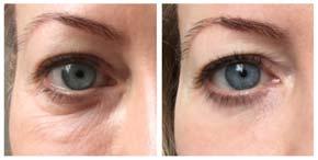 crema contorno occhi prima-dopo