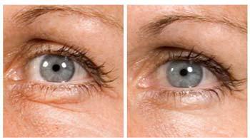 crema-contorno-occhi-shiseido-bio-performance-risultati