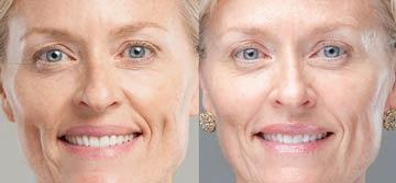 Crema antirughe 60 anni shiseido prima dopo